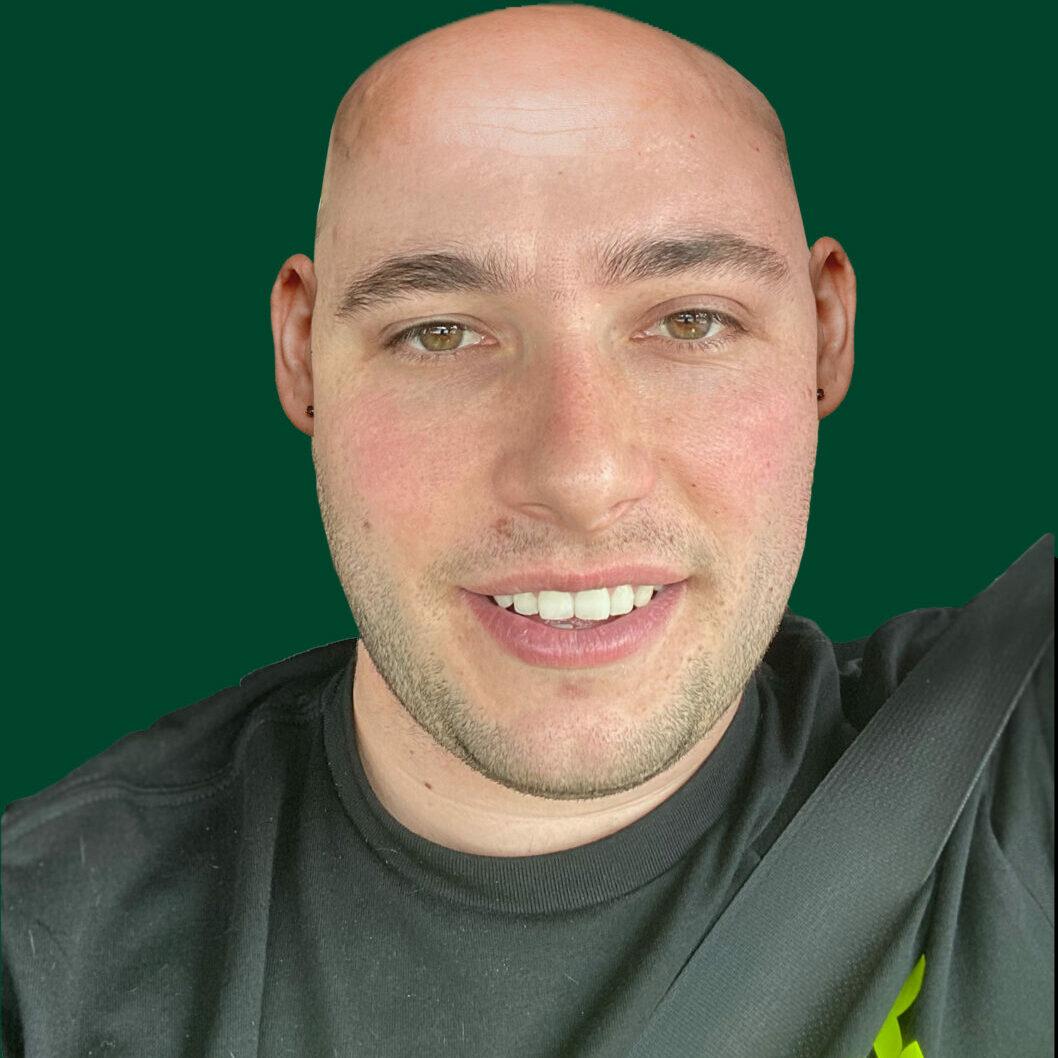 zach-hamilton-bald